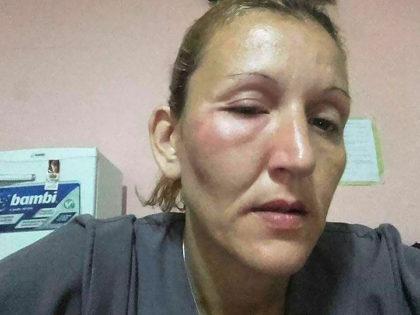 Fueron agredidos una empleada y un niño del Hogar de Abrigo
